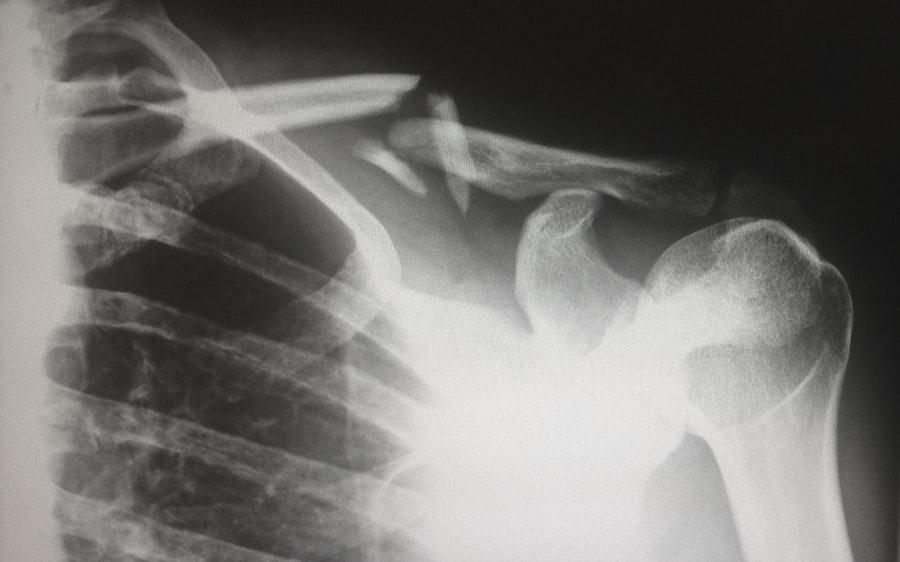 Schulterschmerzen bei Sport